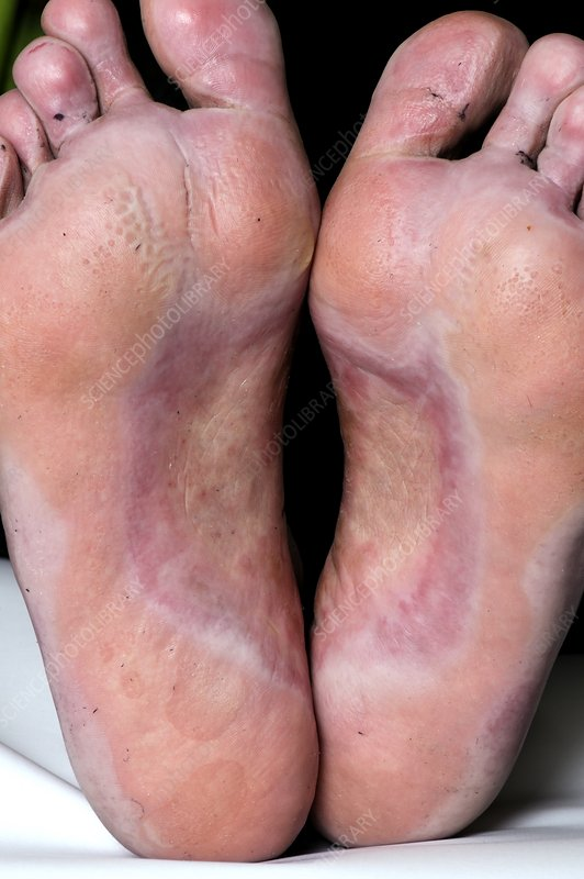 Foot infection