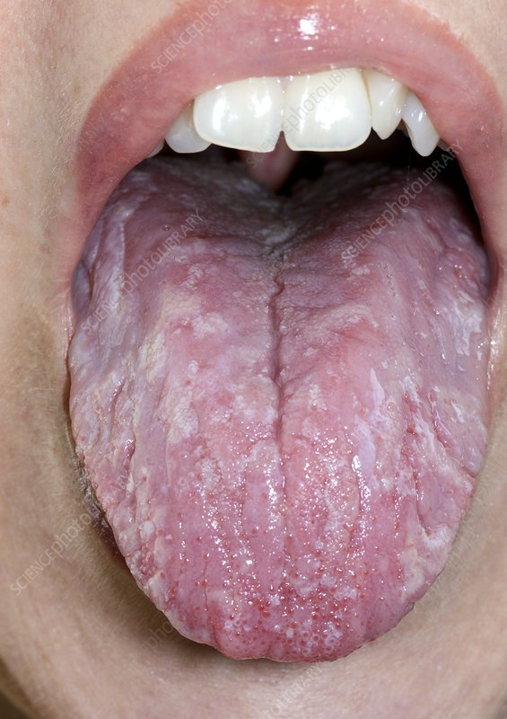 Inflamed tongue in iron deficiency