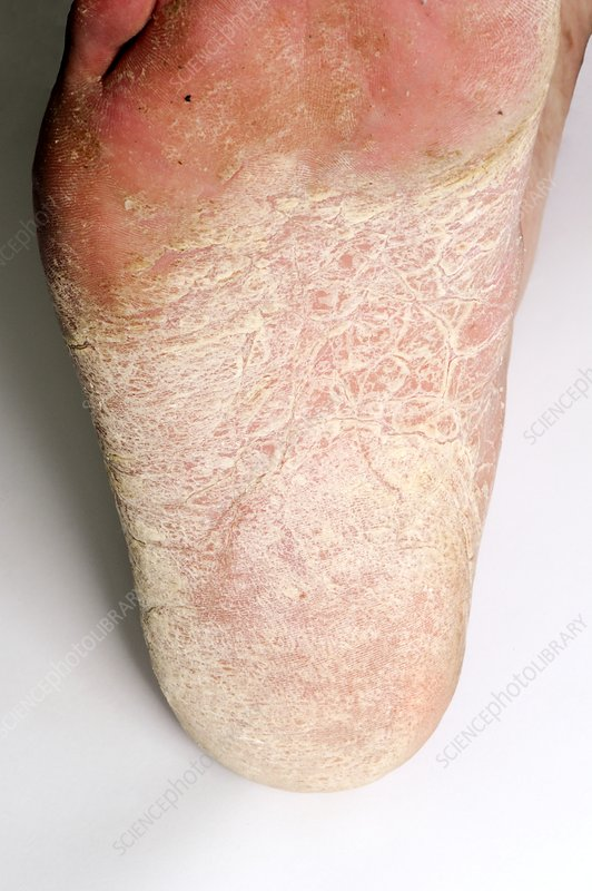 Eczema of the foot