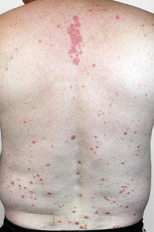 Psoriasis of the back