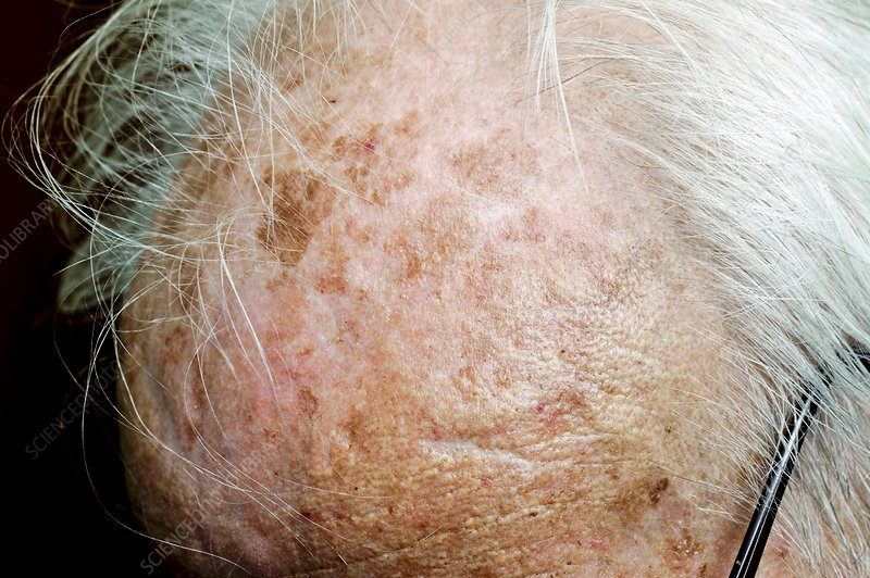 Solar keratosis of the scalp