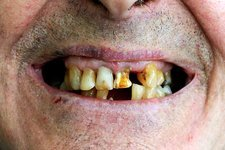 Tooth decay in chemotherapy