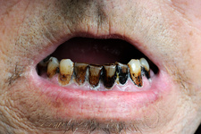 Tooth decay in a smoker