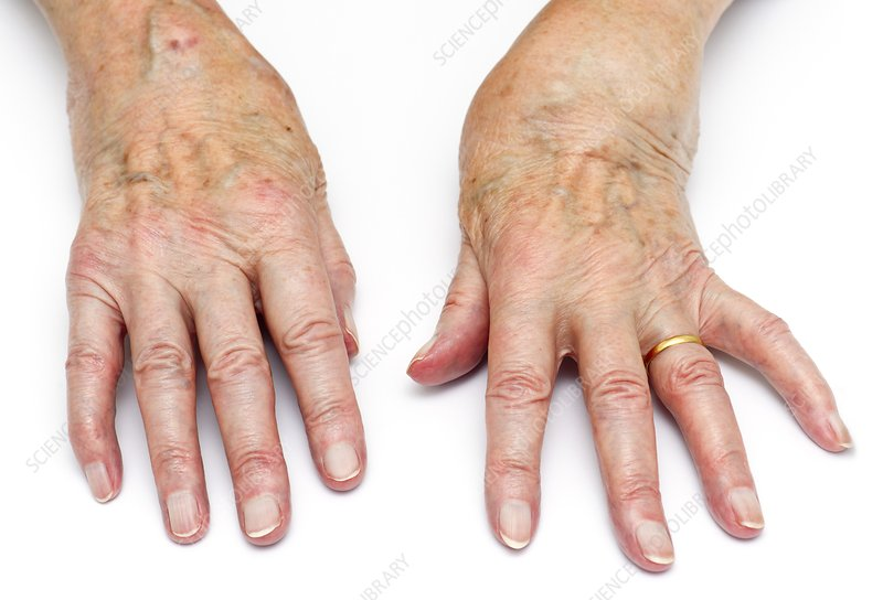 Rheumatoid arthritis of the wrists