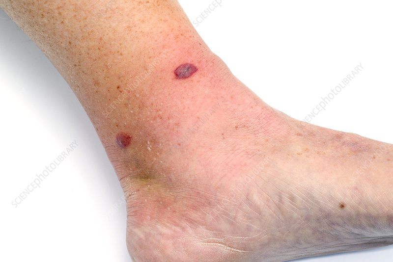 Cellulitis after insect bite