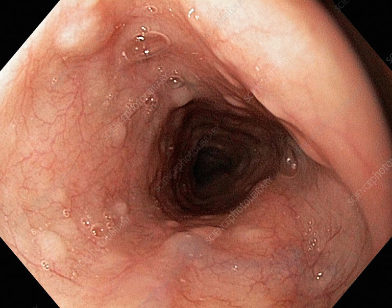 Glycogenic acanthosis, endoscope view