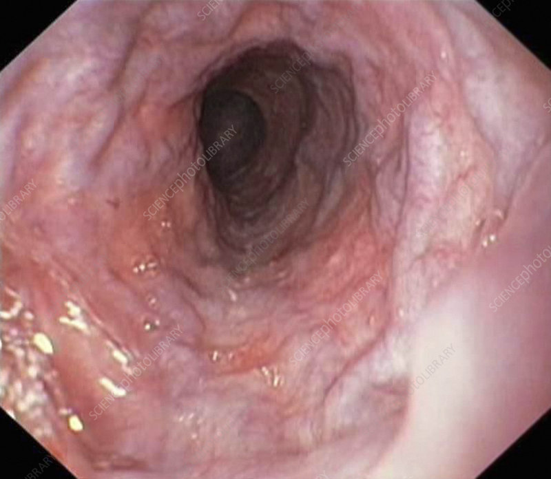 Oesophageal varices, endoscope view