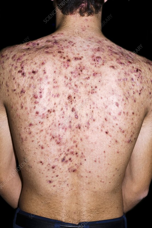 Cystic Acne Stock Image C023 9330 Science Photo Library