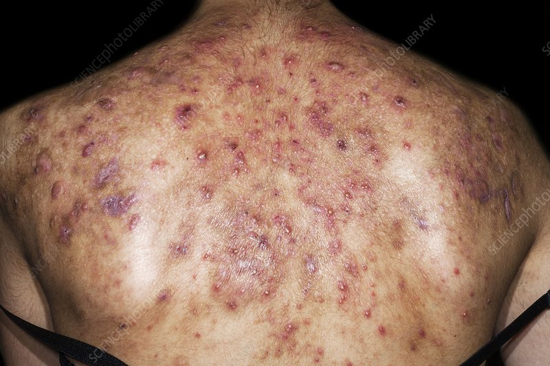 Acne In Hair >> Cystic acne - Stock Image - C023/9331 - Science Photo Library