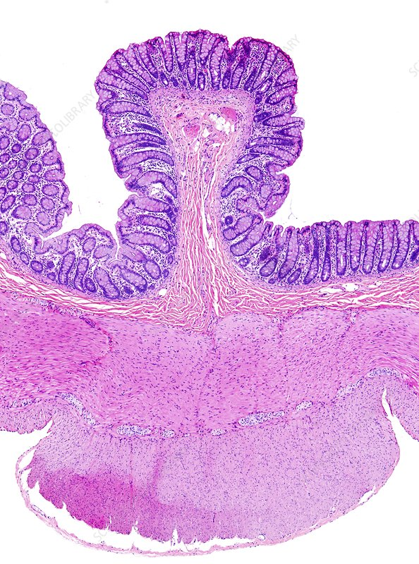 Large bowel, light micrograph