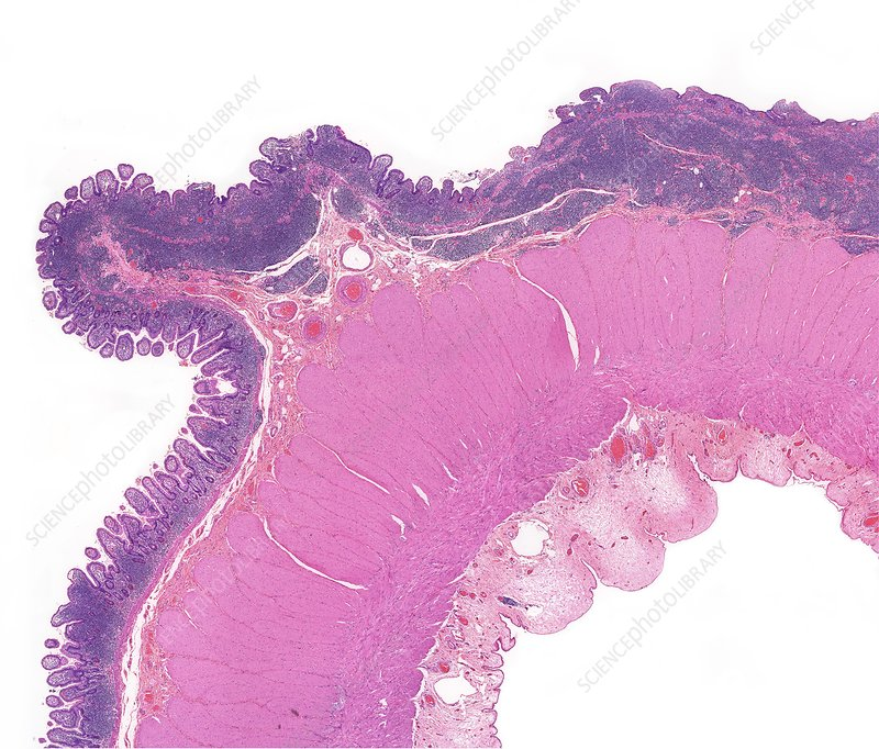 Human bowel lymphoma, light micrograph