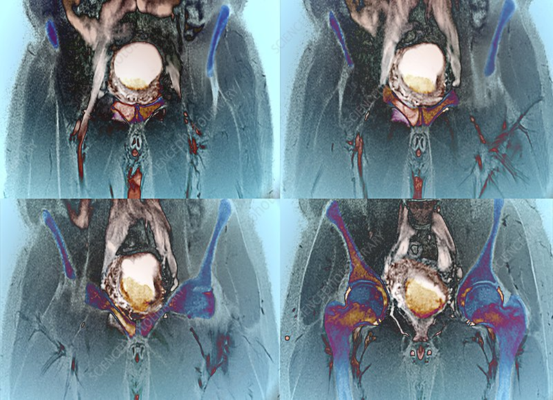 Metastatic bladder cancer, MRI