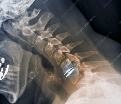Spinal disc implant, X-ray