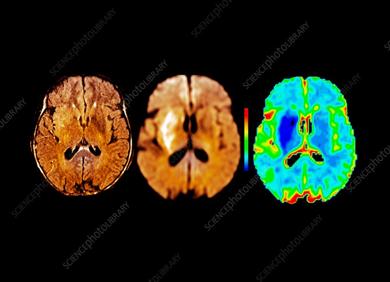 Brain in ischemic stroke, MRI