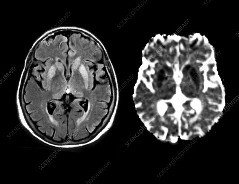 Brain in Creutzfeldt-Jakob disease, MRI