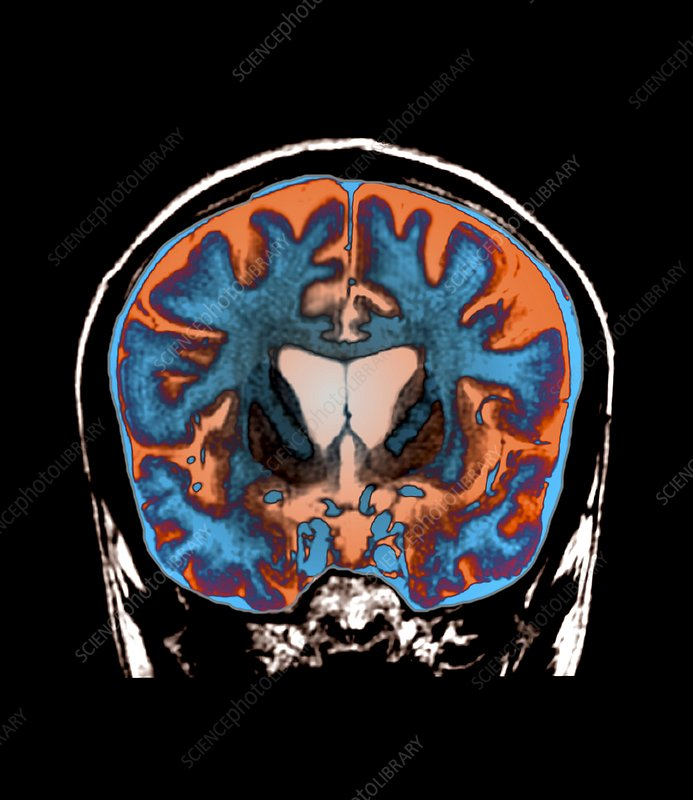 Brain in Huntington's disease, MRI