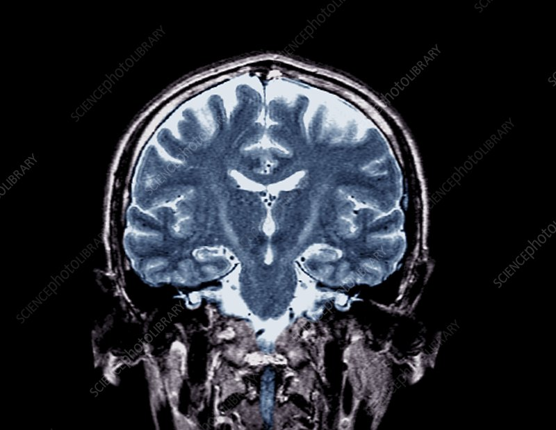 Brain in motor neurone disease, MRI