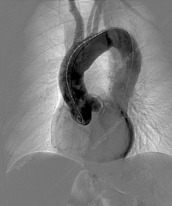 Aortic aneurysm in hypertension, X-ray