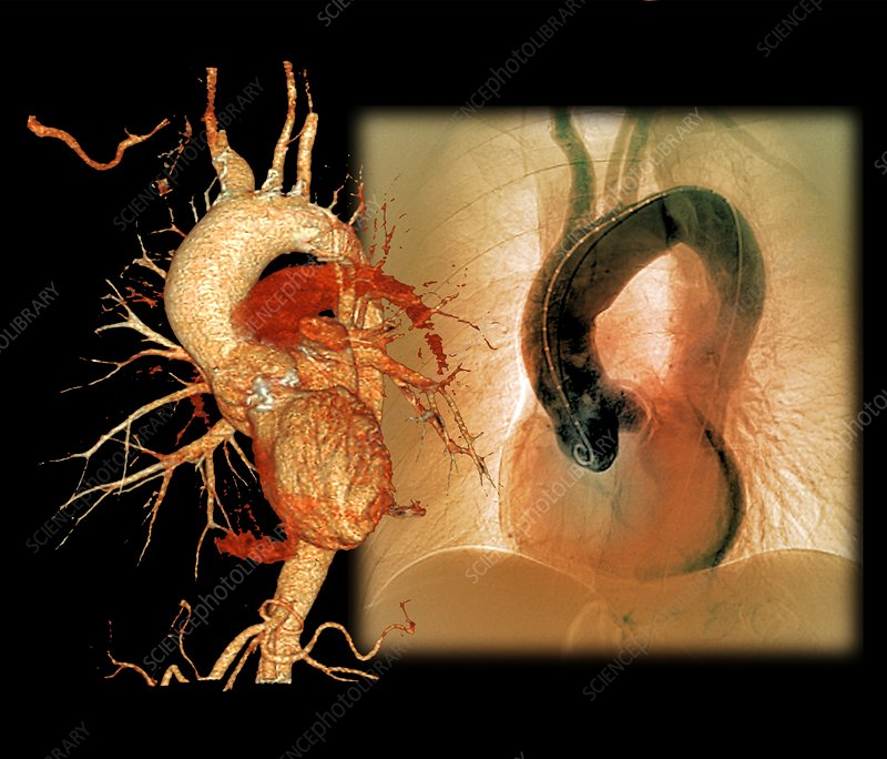Aortic aneurysm in hypertension