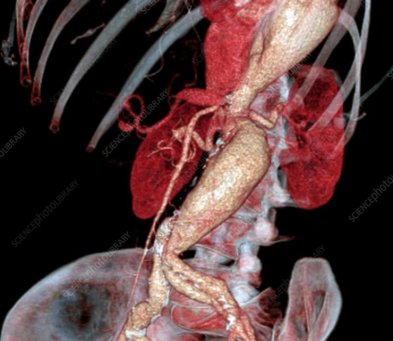 Arterial aneurysms in Marfan syndrome, CT