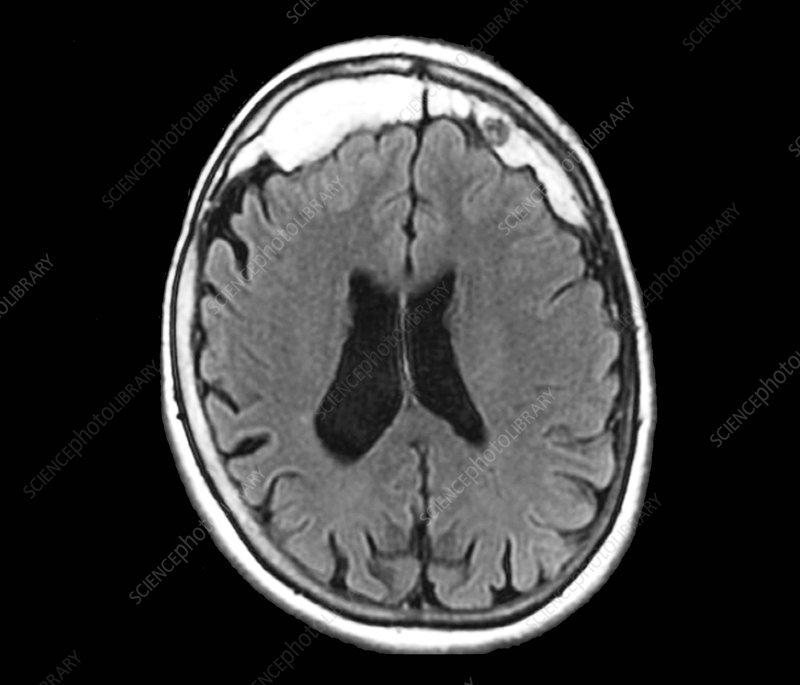 Excess skull growth, MRI