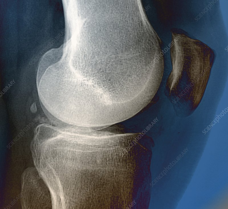 Calcification in the knee, X-ray
