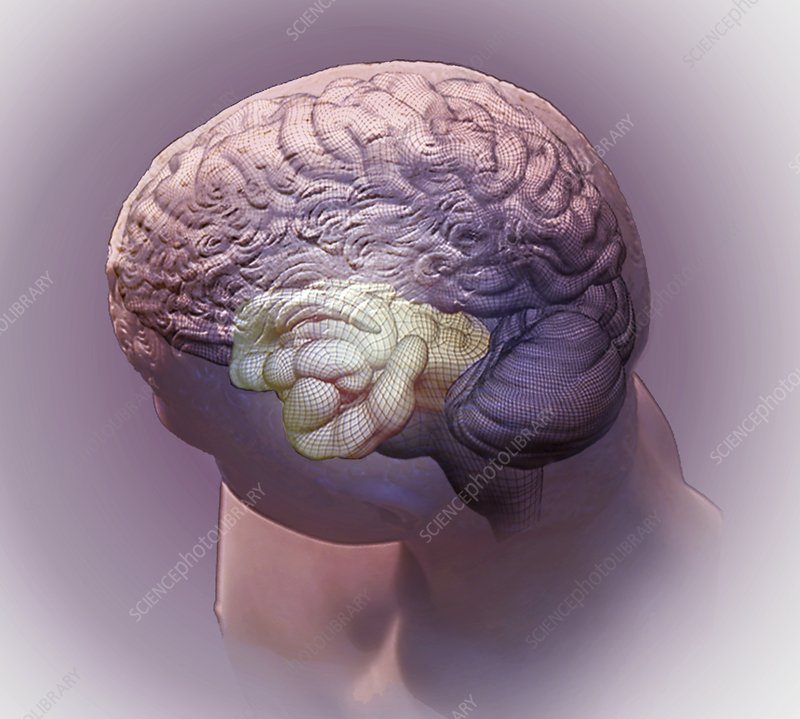 Brain and hippocampus, 3D CT scan