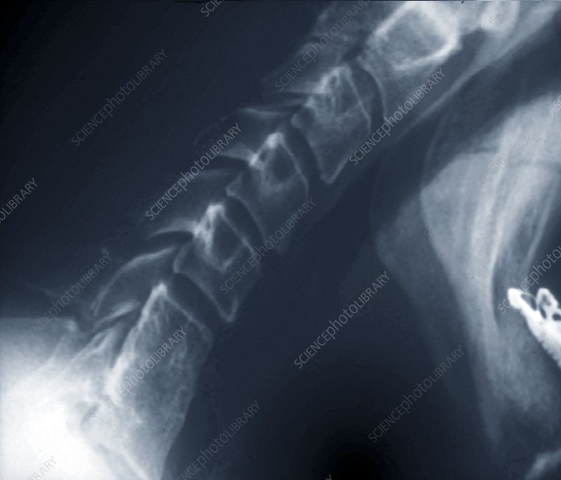 Neck flexion with spinal block, X-ray