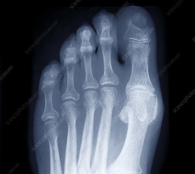 Osteonecrosis in diabetes, X-ray