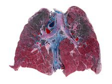 Lung silicosis