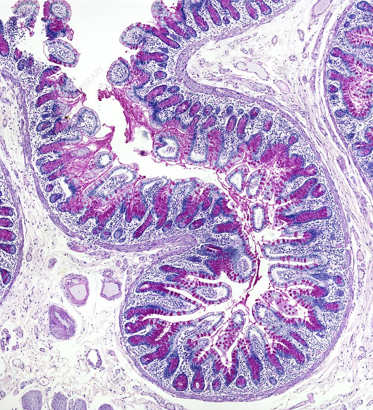 Small bowel, light micrograph