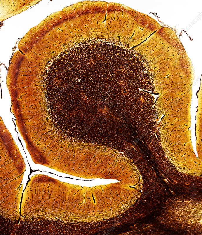 Brain, light micrograph