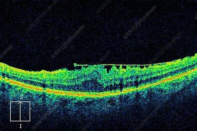 Epiretinal membrane, OCT scan