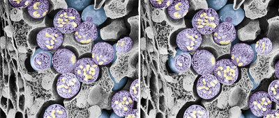 Dividing pollen cells, stereoscopic SEM