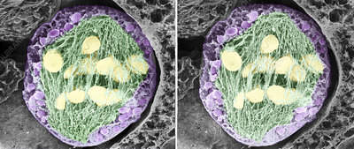 Dividing pollen cell, stereoscopic SEM
