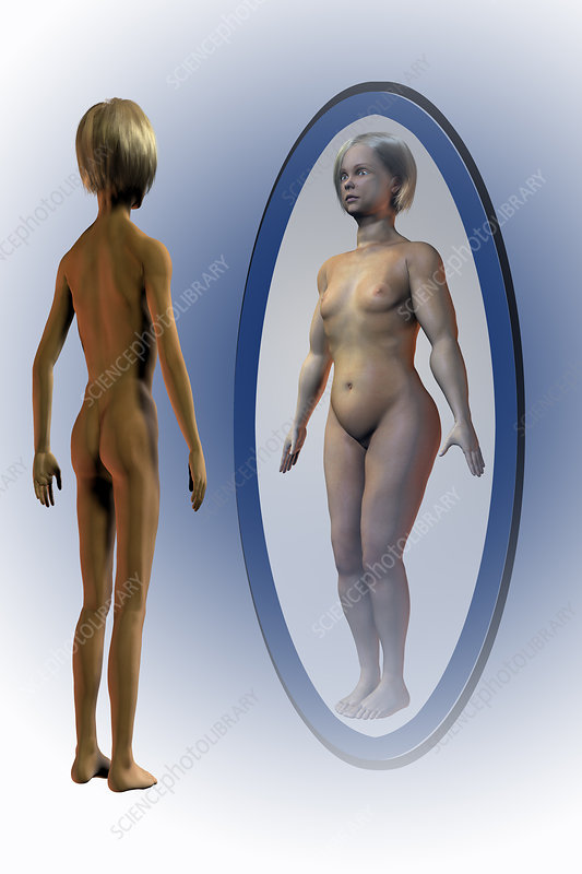 Body dysmorphia, illustration