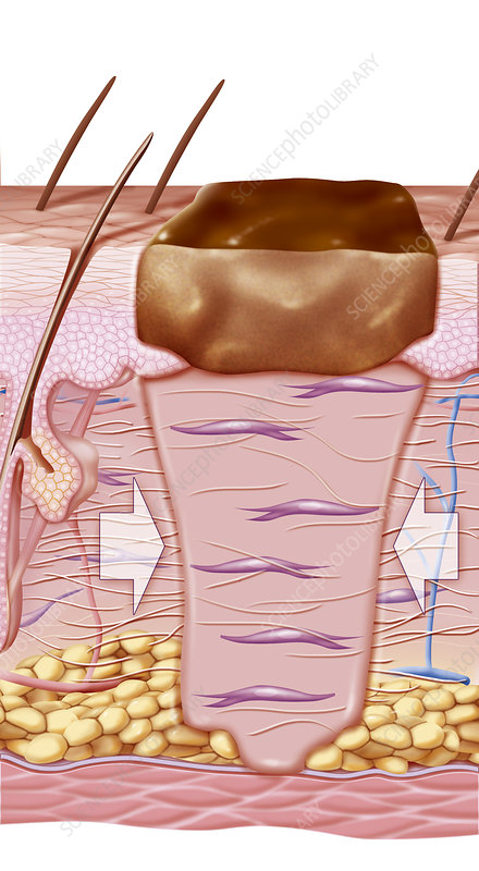 Wound Healing, Illustration