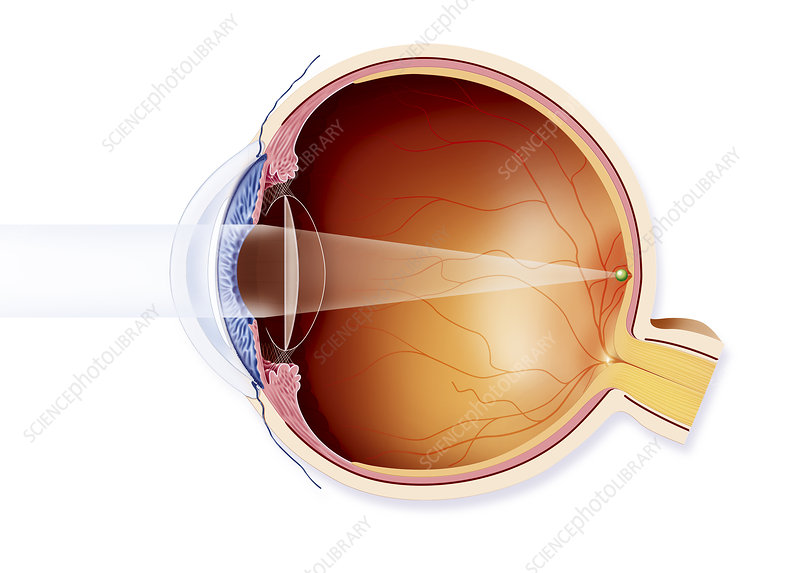 Cataract, Implant