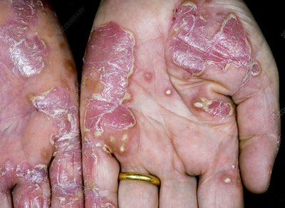 Psoriasis of the hands