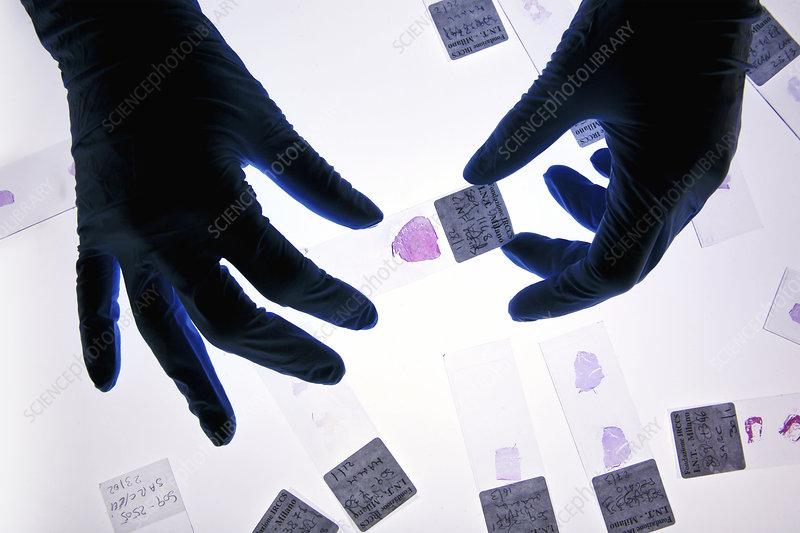 Histology tissue sample preparation - Stock Image C024/6394 ...