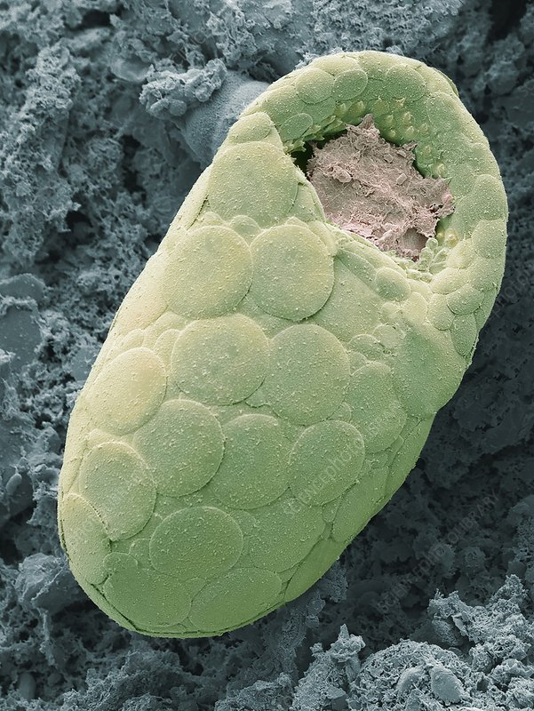 Testate amoeba in hedgehog faeces, SEM