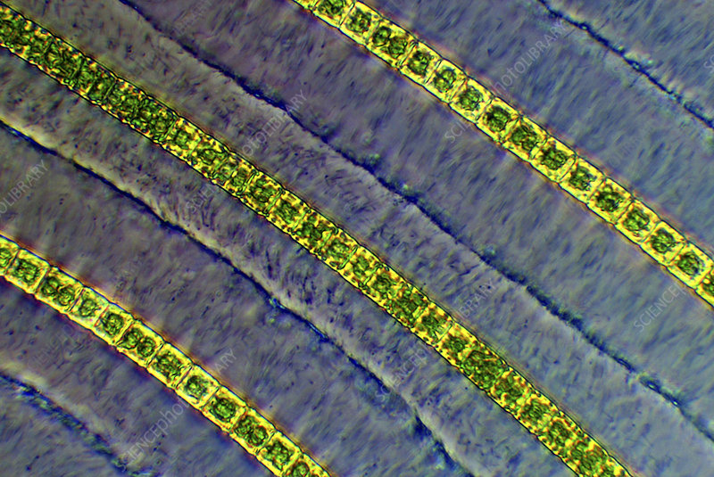 Hyalotheca desmids, light micrograph
