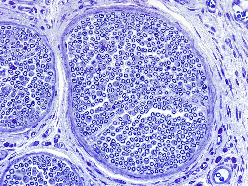 Peripheral nerve, light micrograph