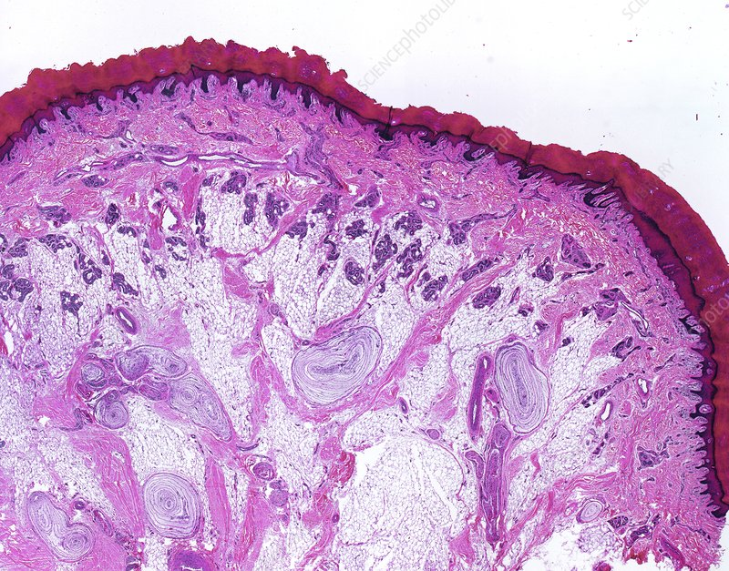 Pacinian corpuscles, light micrograph