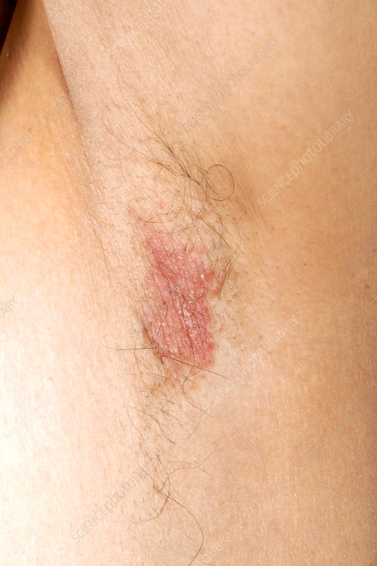 Flexural psoriasis of an armpit