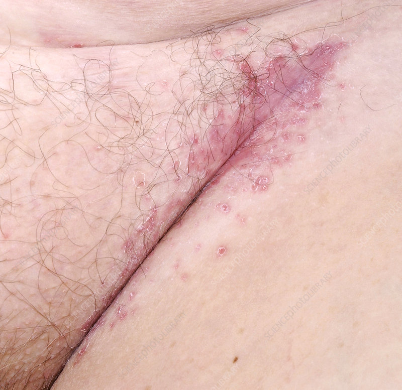 Inverse psoriasis is the most common type of psoriasis in the genital area 1
