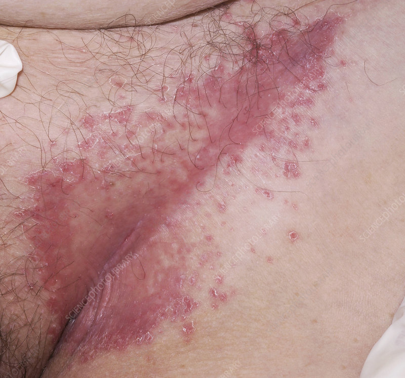 Flexural psoriasis of a groin cleft