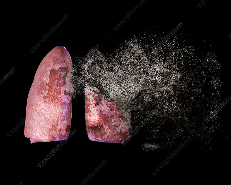 Lung disease, conceptual illustration
