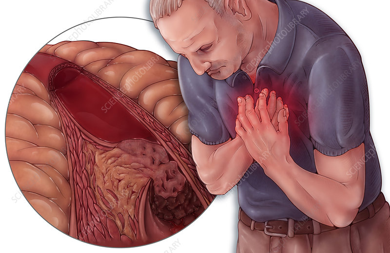 Heart Attack and Atherosclerosis
