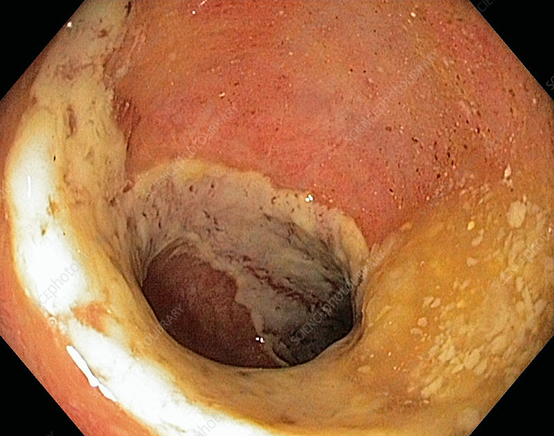 Ischaemic colitis, endoscope view